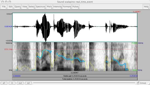 Voice visualization